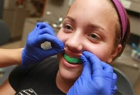 Sports Mouthguard fitting